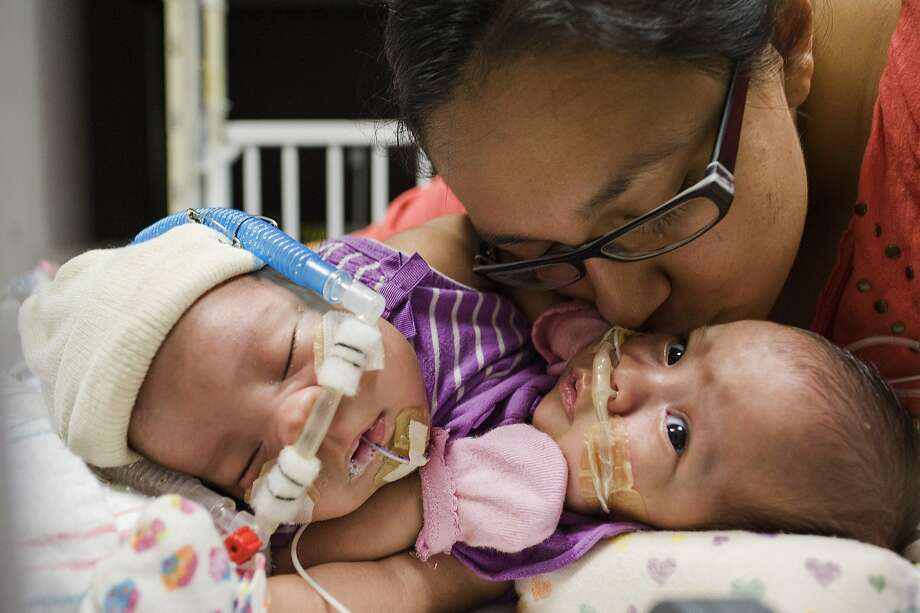 Separation planned: In this photo taken on July 25, Elysse Mata kisses her 3-month-old conjoined twins Adeline Faith, left, and Knatalye Hope Mata at Texas Children's Hospital in Houston. They are joined at the chest and share a liver, diaphragm, pericardium (the lining around the heart) and probably intestines. Separating them will be delicate, doctors say, but not impossible. Photo:  Allen S. Kramer, Associated Press