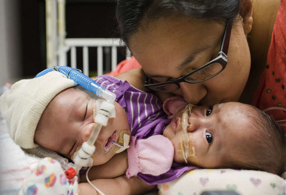 Elysse Mata with her conjoined twins, Adeline Faith Mata (left) and Knatalye Hope Mata, at Texas Children's Hospital in Houston. Photo: Allen S. Kramer / Associated Press / Texas Children's Hospital