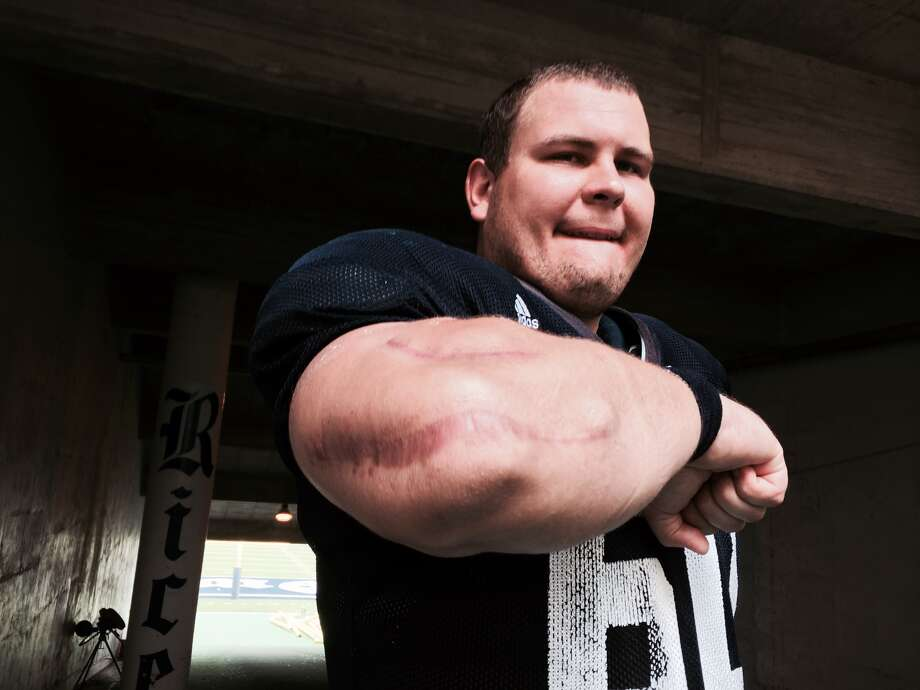 Rice center Matt Simonette carries vivid reminders of his multiple surgeries. Photo: Joseph Duarte