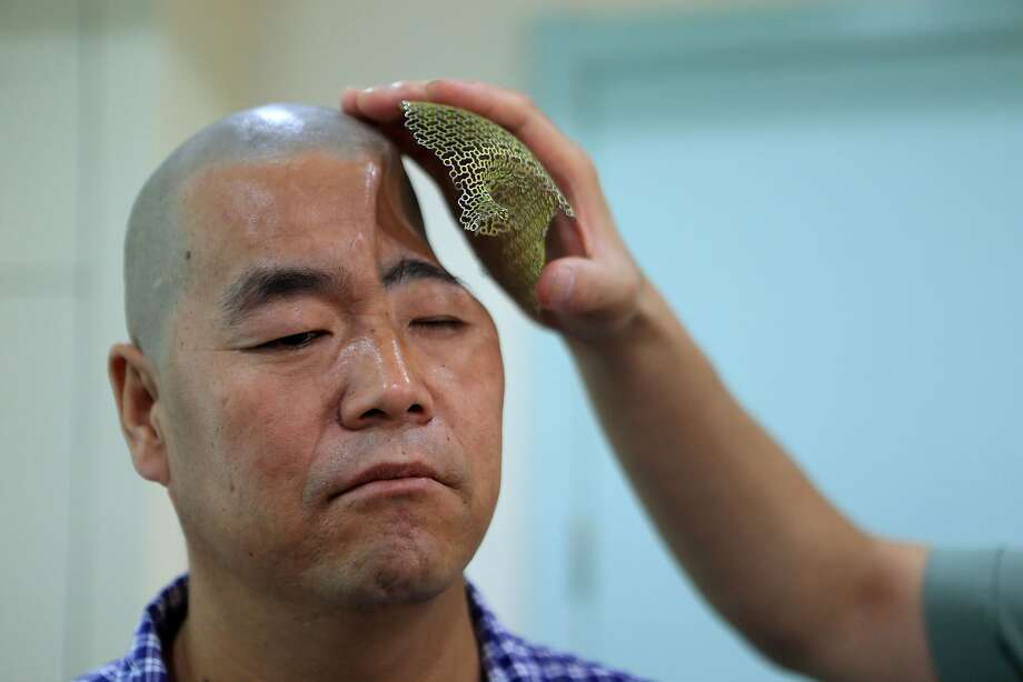 Rebuilt temple:Doctors in Xian, China, have replaced part of the skull of a 46-year-old man named Hu, who plunged three stories and smashed his head on a pile of wood at a construction site. The accident caused a significant portion of Hu's skull to cave in. In a first-of-its-kind surgery, a 3D-printed titanium mesh was attached to his skull to cover up the depression seamlessly. Photo: Stringer, AFP/Getty Images