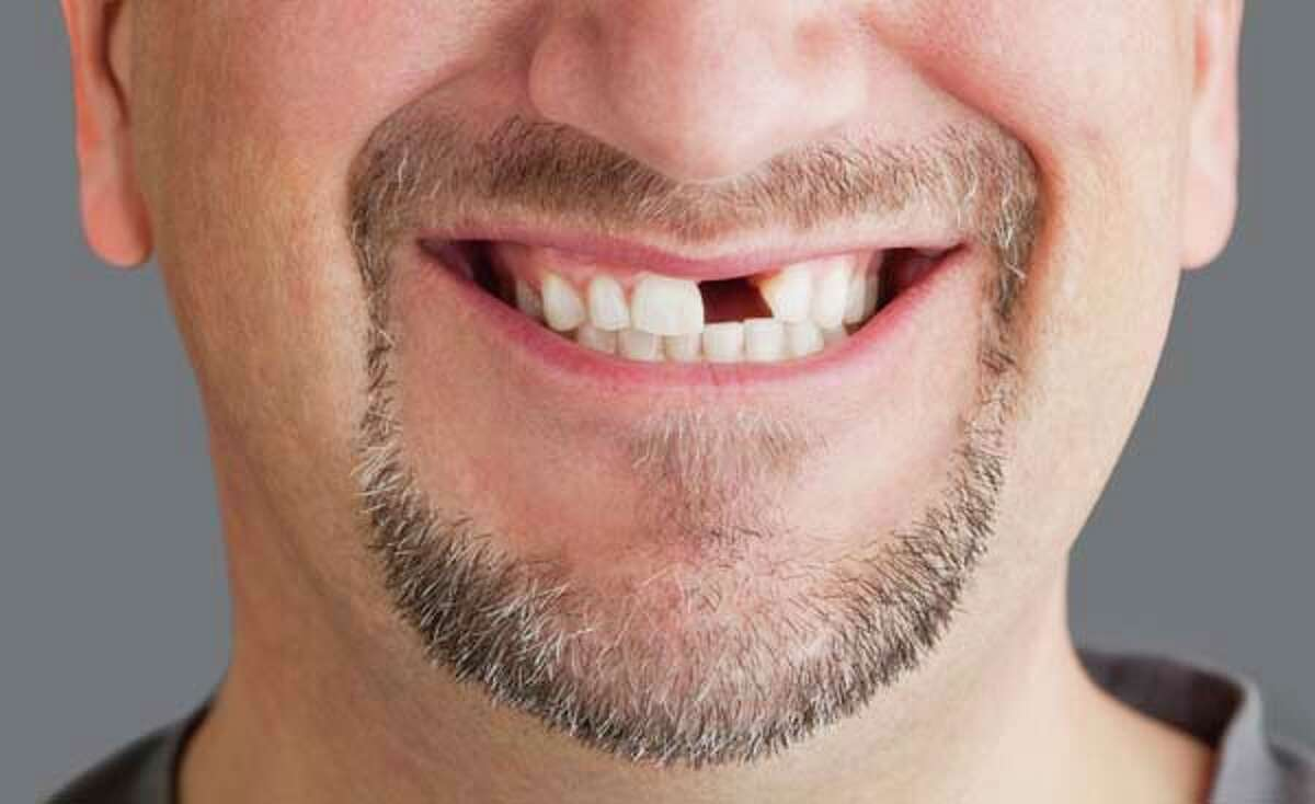 7. Teeth falling out or crumbling (4.7 percent) Possible meanings: You're concerned about your looks, you should eat better, you are afraid of getting old.