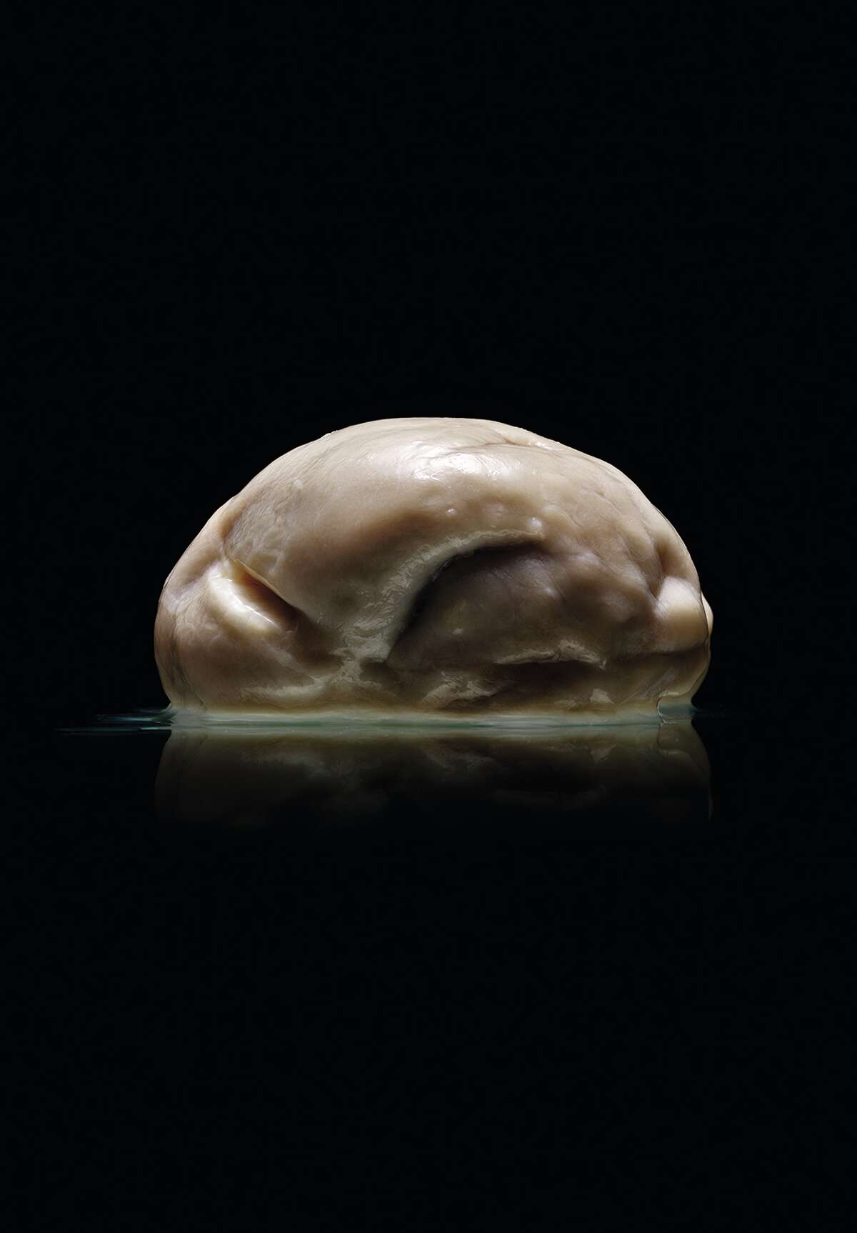 """""""Malformed: Forgotten Brains of the Texas State Mental Hospital"""" - authored by Austin photographer Adam Voorhes and journalist Alex Hannaford - shows dozens of photographs of brains of former patients treated at the State Lunatic Asylum, now the Austin State Hospital, from 1952 to 1983. Voorhes said he and Robin Finlay, Voorhes' wife and business partner, discovered the collection - preserved in formaldehyde in several glass containers - at the University of Texas at Austin while on assignment to photograph a different brain in 2011. Pictured, a brain from the collection."""