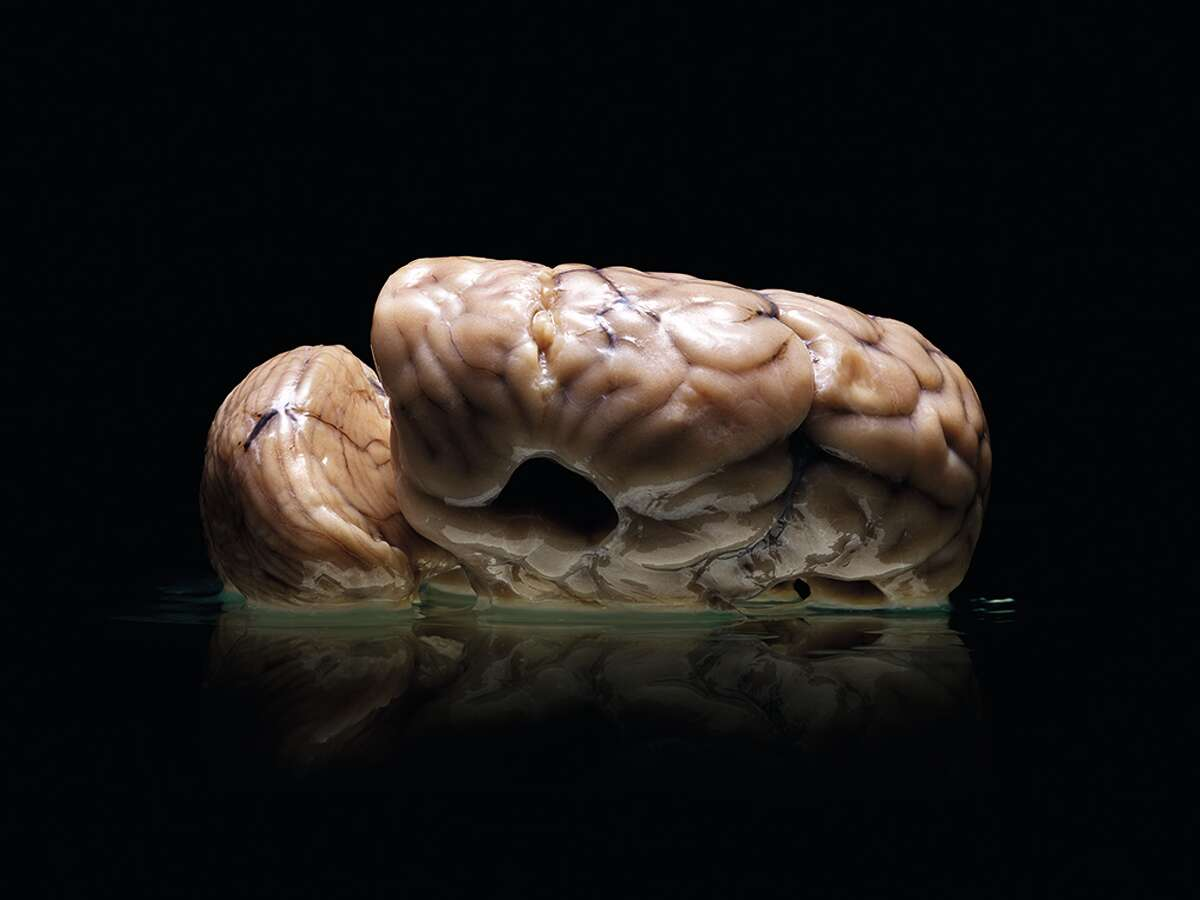 """""""Malformed: Forgotten Brains of the Texas State Mental Hospital"""" - authored by Austin photographer Adam Voorhes and journalist Alex Hannaford - shows dozens of photographs of brains of former patients treated at the State Lunatic Asylum, now the Austin State Hospital, from 1952 to 1983. The collection, housed at the University of Texas at Austin, was intended to aid mental health research. Pictured, a brain from the collection."""