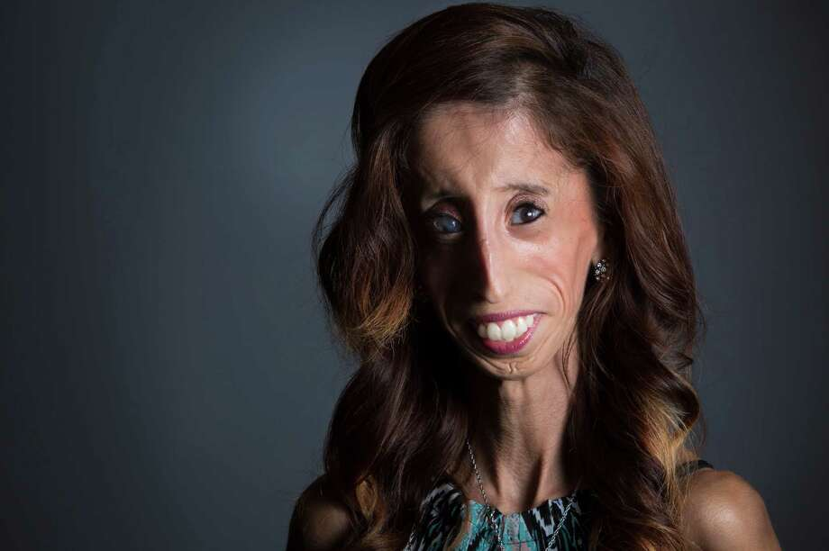 "Lizzie Velasquez, 25, of Austin, has been called by online bullies ""the ugliest woman in the world."" She's now the author of three books and has become a motivational speaker. Photo: Marie D. De Jesus, Staff / © 2014 Houston Chronicle"