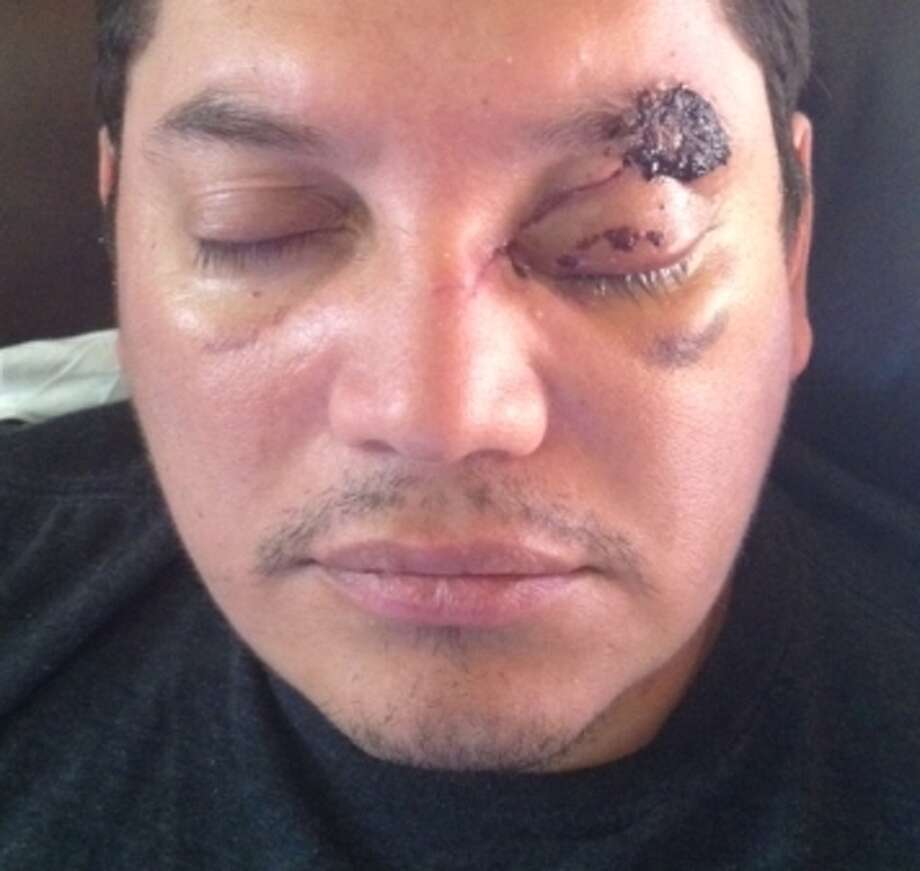 Roberto Chicas, 35, was struck on the head with a hammer by his UberX driver, Patrick Karajah, 26, on Sept. 23, 2014. A week later, he and his doctors still don't know if he will be able to see out of his left eye. / ONLINE_YES