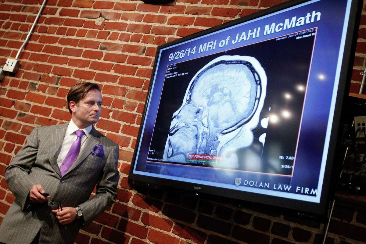 Attorney Chris Dolan looks at an MRI of Jahi McMath at a news conference where he showed video that he says demonstrates that McMath is not brain dead in San Franicisco on Thursday, Oct. 3, 2014.