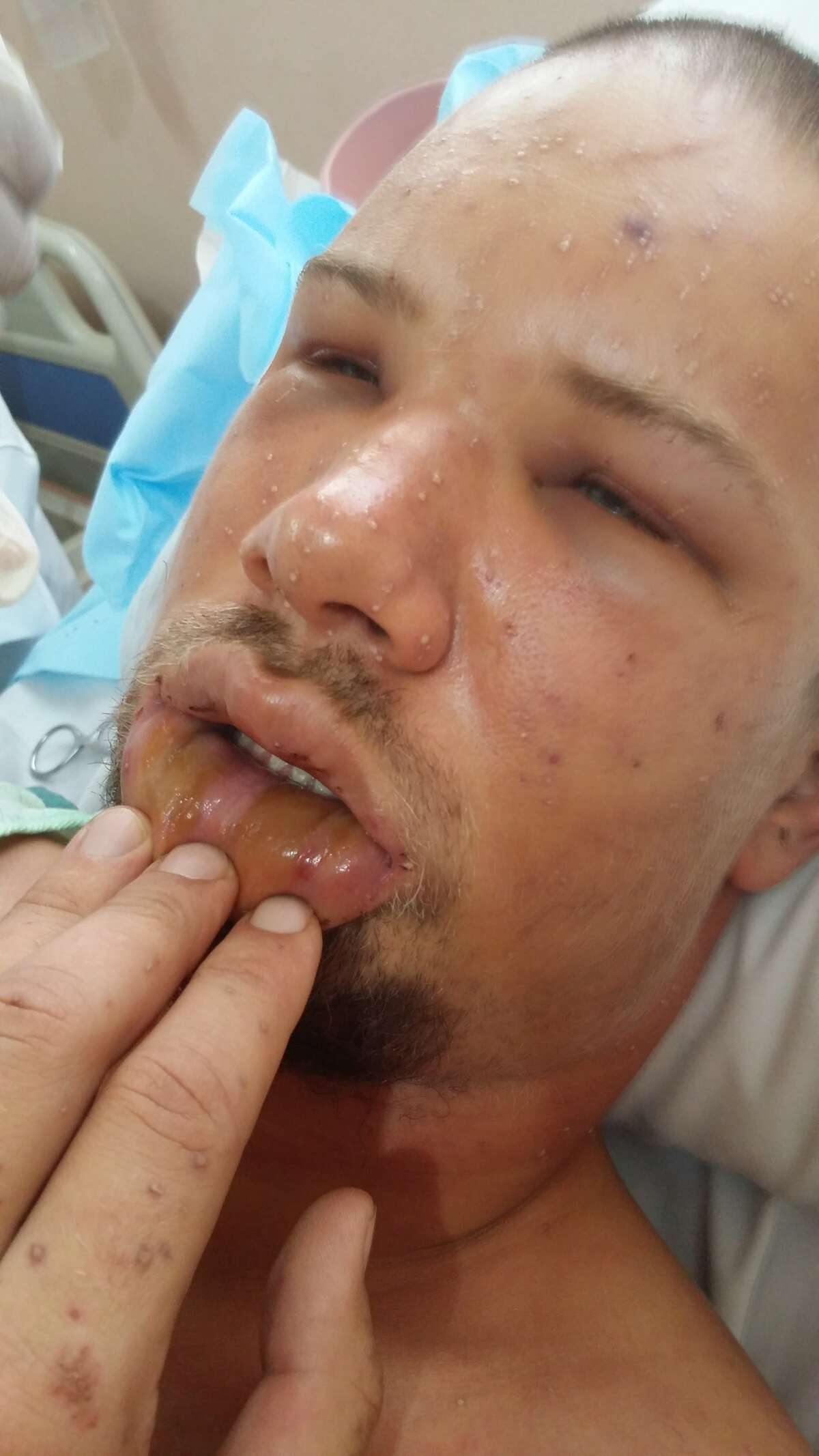Mitch Parker, 29, from Sugar Land suffered over 1,000 bee stings while he was up a 200 foot high cliff in Belize. Doctors told family he would not make it through the night.