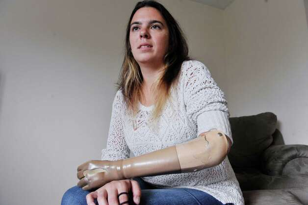 Sarah Herrmann wears her myoelectric prosthetic arm at her parent's home on Wednesday, Oct. 1, 2014, in Loudonville, N.Y. Herrmann has had the arm for 12 years. The arm is held together with packaging tape and it has tears in it. The arm also no longer functions where Herrmann can make the fingers of the hand open and close because a battery back does not stay in place.  (Paul Buckowski / Times Union) Photo: Paul Buckowski / 00028762A