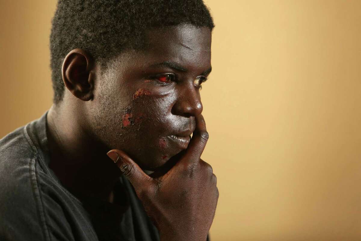Darius Hutch survived a crash involving an SUV while riding his horse in the 900 block of West Little York on Sunday night on Wednesday, Oct. 22, 2014, in Houston.