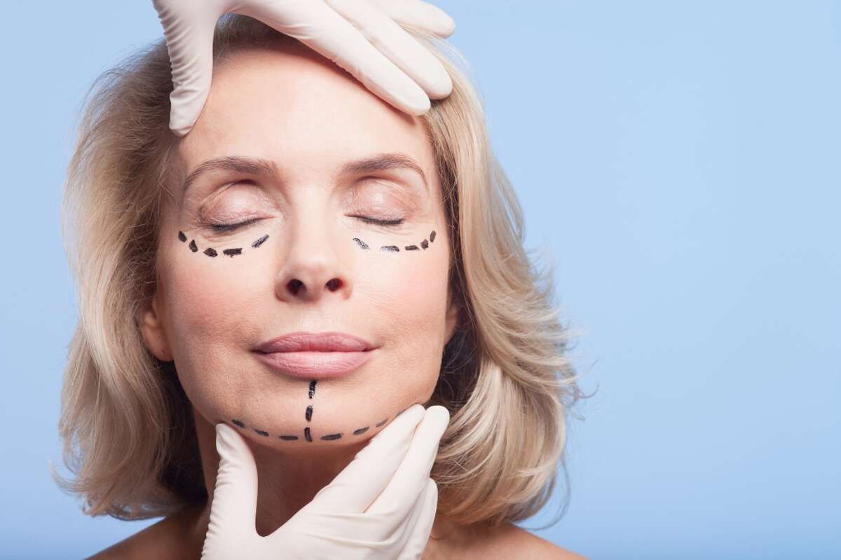 Employee's plastic surgery for enhancement purposes needed some