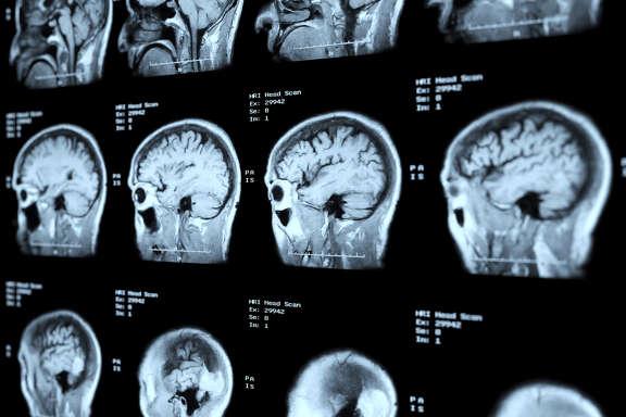 MRI Head Scan Perspective