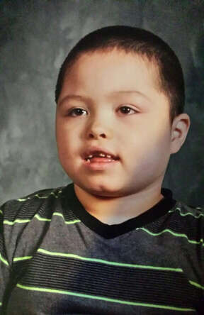 Izaiah Ruiz, patient at Texas Children's Hospital will undergo a clinical trial of a drug containing a synthetic component of marijuana for children with catastrophic form of epilepsy known as Dravet syndrome. The worldwide trial will enroll 30 patients who will receive the drug, a first-of-its kind form of pure cannabidiol made by a British company.