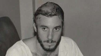 Mark Anner several days after bombing in El Salvador, with head shaved, revealing sutures that ran across the top and down the back of his  head.