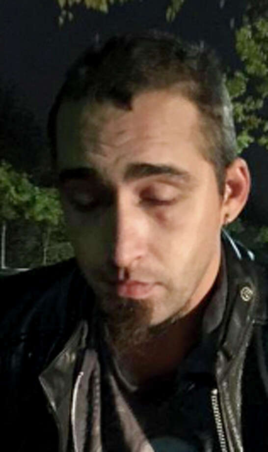 David Kalac allegedly posted photos after killing his girlfriend. Photo: Associated Press / Wilsonville Police Department