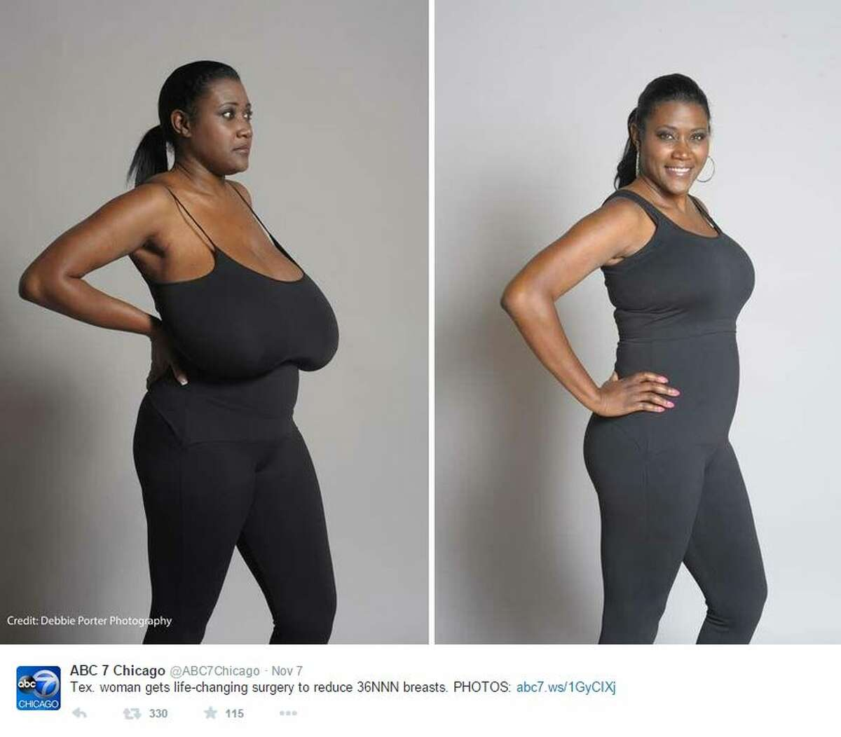A Beaumont woman has undergone breast reduction surgery after a rare hormonal condition caused her breasts to swell - weighing roughly 15 pounds each. Kerisha Marks, 40, told The Washington Post she underwent the surgery after suffering from gigantomastia, a hormonal condition that causes breasts to grow up to 3 percent of a person's body weight.