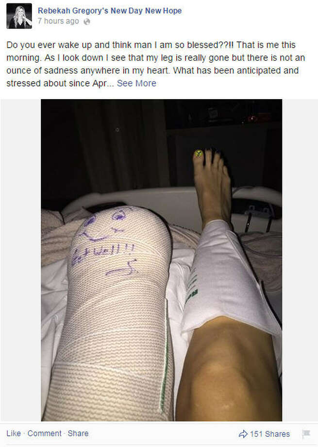 Rebekah DiMartino, a Katy woman who was injured in the Boston Marathon bombing was recovering Tuesday, November 11, 2014, after surgery to amputate part of her left leg. She post images following the surgery on her Facebook page. Photo: Rebekah Gregory's New Day New Hope ,  Facebook