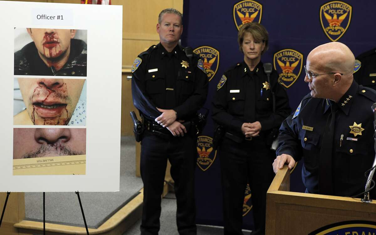 Police Chief Greg Suhr references a board with photos of an injured officer as he detailed arrests, vandalism, and assaults against police during Black Friday protests during a press conference at SFPD headquarters in San Francisco, Calif., on Monday, December 1, 2014.