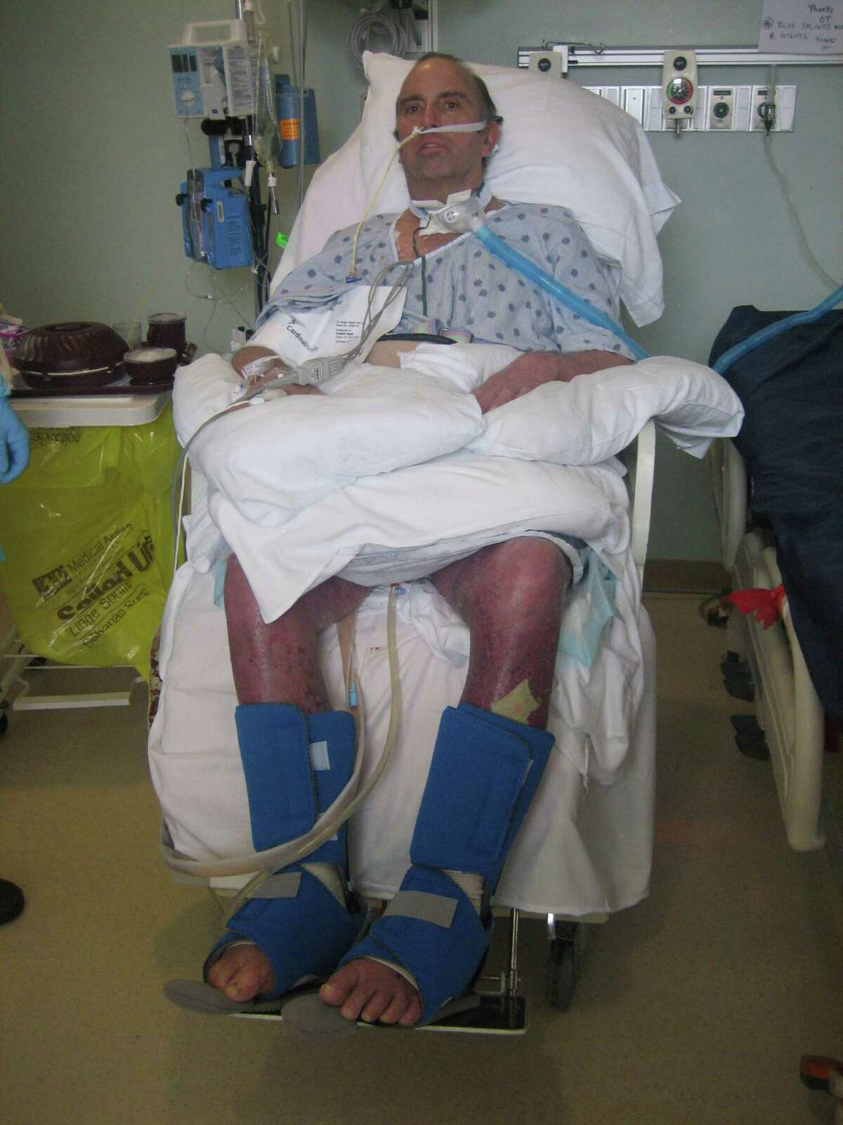 After falling into a scalding pool of water that left his body severely burned, Bobby Roye spent months in the hospital healing. His body was burned from his toes to a few inches above his belly button, almost a quarter of the burns were third degree.