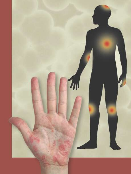 4Those living with psoriasis often report that they feel stigmatized because of their skin condition 2