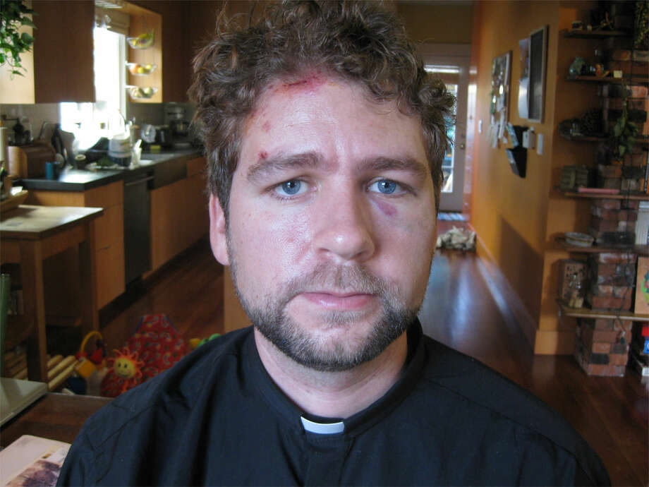 Rev. John Helmiere, pastor at Seattle's Valley & Mountain Fellowship, pictured at his home following his arrest by Seattle police during a protest. Helmiere claims he was beaten by police while calling for peace during a Dec. 12, 2011, protest outside a Port of Seattle pier. (Photo courtesy ofJohn Helmiere.)