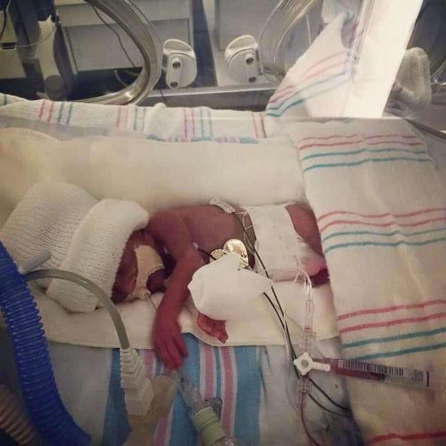 Monica Ramirez's baby girl, Ellie, is in Memorial Hermann Hospital's neonatal intensive care unit. / handout