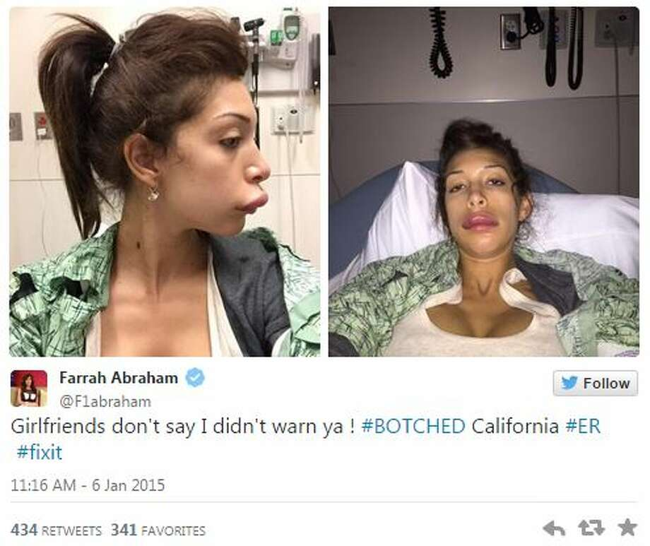 """Farrah Abraham, a former star on MTV's """"Teen Mom"""" and """"16 and Pregnant"""" who became a porn actress, looks like she stuck her upper lip in a hornet's nest after some botched plastic surgery.  In photos posted to her Twitter profile Tuesday, Abraham's lip looks extremely swollen after an injection gone wrong. Photo: Fechter, Joshua I, Twitter"""