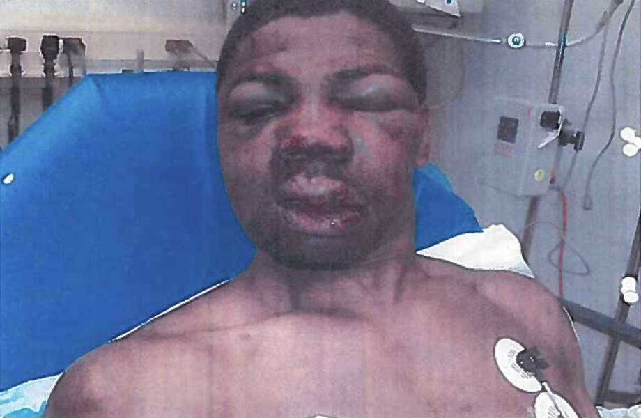 FILE - This April 2012 file photo made by investigators and obtained by The Associated Press from the City of New York Office of Administrative Trials and Hearings, shows inmate Robert Hinton bloodied with a swollen face in a medical clinic in New York, shortly after an April 3, 2012 beating. On Wednesday, Jan. 21, 2015, New York City's jails commissioner fired five correction officers and a captain for their part in Hinton's beating.  (AP Photo/City of New York Office of Administrative Trials and Hearings, File) ORG XMIT: NYR102 / City of New York Office of Administrative Trials and Hearings