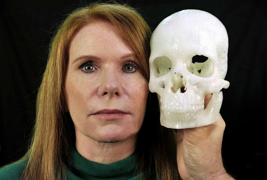 """In this photo taken Jan. 13, 2015, Pamela Shavaun Scott holds a 3D printer model of her skull after her brain tumor was removed from behind her eye, in Morro Bay, Calif. Doctor after doctor said removing the tumor causing Pamela Shavaun Scott's unrelenting headaches would require cutting open the top of her skull and pushing aside her brain. Then one doctor offered a startling shortcut _ operating through her eyelid to get into the hard-to-reach center of the head. A big benefit: """"We have to saw off much less of your head.""""  (AP Photo/Phil Klein) Photo: Phil Klein, FRE / FR16480 AP"""
