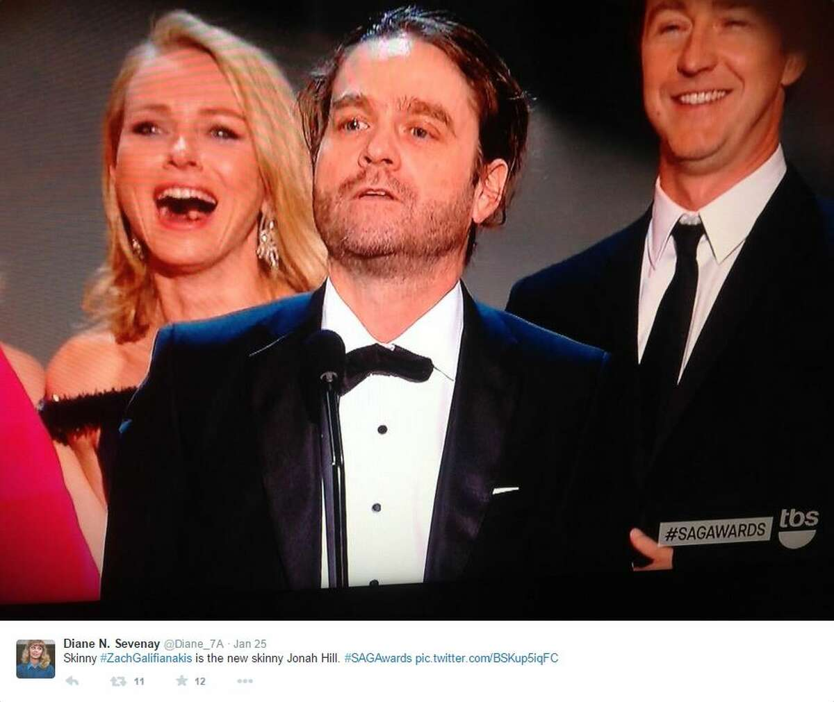 """Zach Galifianakis looked unrecognizable at this weekend's SAG Awards when he picked up an award for """"Outstanding Cast"""" in the movie """"Birdman."""""""