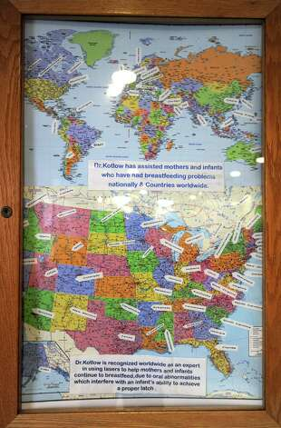A map hangs in the office of Dr. Lawrence Kotlow showing how far patients have traveled to see him Friday, Jan. 16, 2015 in Albany, N.Y. Kotlow specializes in pediatric dentistry and the diagnosis and treatment of tongue tie, which is done to help babies who cannot breast feed. (Lori Van Buren / Times Union) Photo: Lori Van Buren / 00030222A