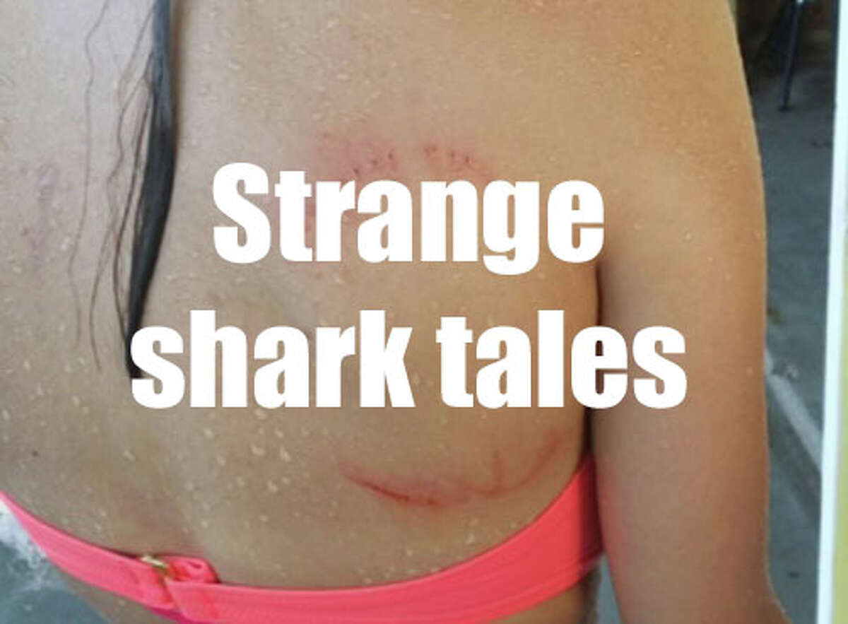 A Bellaire teenager is wearing the mark of what is believed to be a weekend encounter with a shark. Mikaela Amezaga, 14, acquired the half-moon, mirror-image skin breaks that resemble an open-mouth shark bite on her back around 6:30 p.m. Saturday while swimming near the Isla Del Sol community on the west end of Galveston Island. Credit Daniel Amezaga