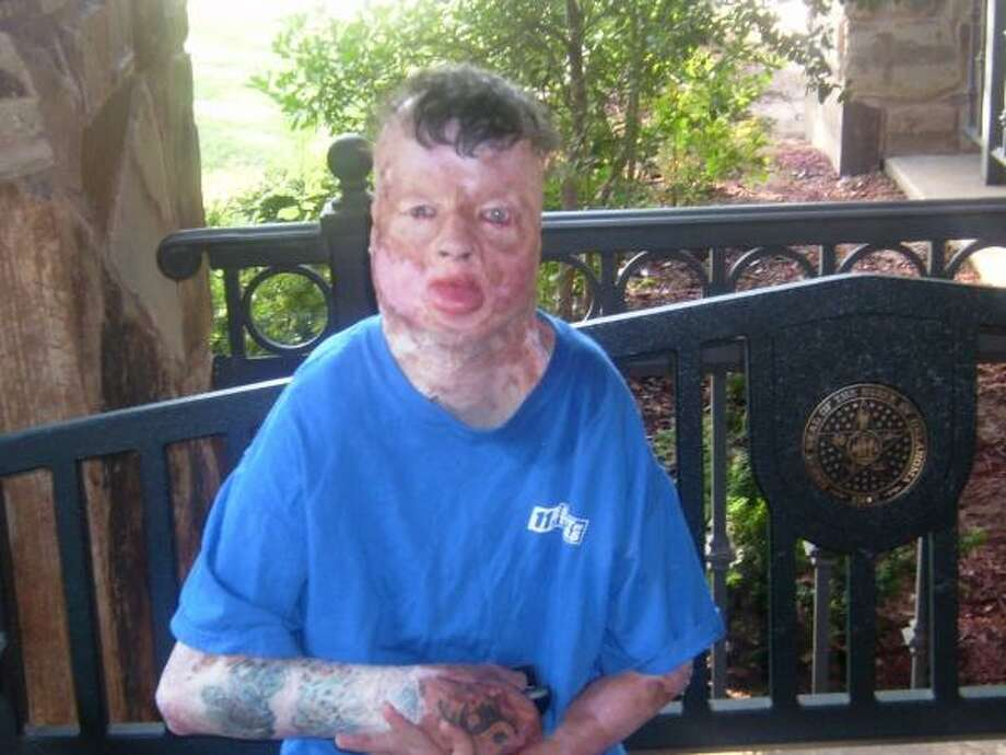 Robbie Middleton, who was severely burned in a 1998 attack when he was 8 years old, died in 2011 at age 21. / family photo