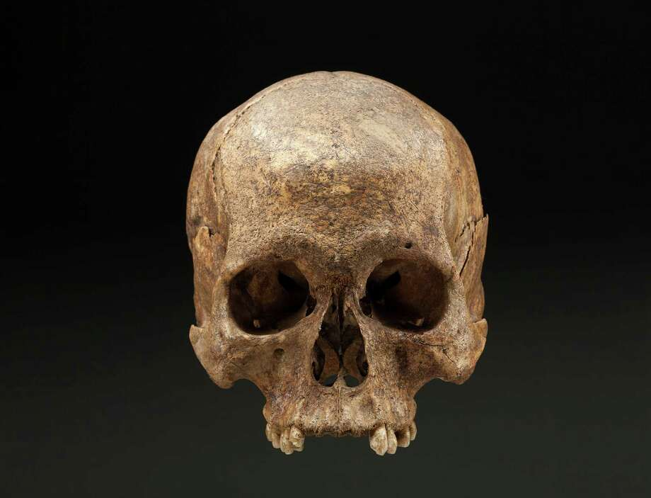 The skull, found at Gettysburg, was much too old to fit the Civil War timeline. Researchers say the bones are of a Native American man who lived about 700 years ago. How his skull came to be there and misidentified is still a mystery, say officials of the Smithsonian, the National Park Service and the Gettysburg Foundation. Photo: HANDOUT, STR / THE WASHINGTON POST
