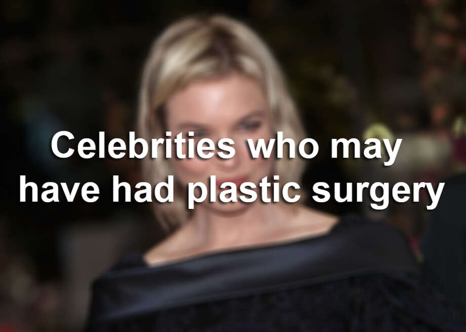 These stars are rumored to have gone under the knife. See for yourself. Photo: File