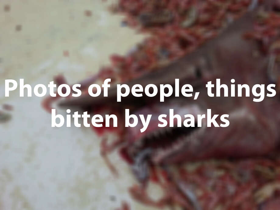 Sharks are fascinating and dangerous creatures of the sea. Check out photos of people, animals and things that have been shredded by these animals' toothy mouths.