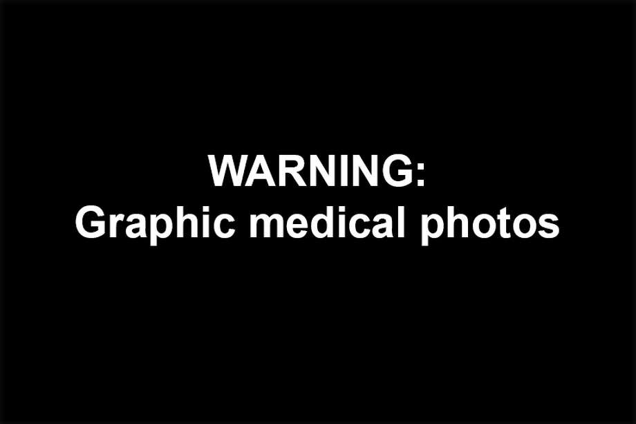 The following images of medical ailments and cases are disturbing and may make you gag and/or throw up. Photo: SAEN