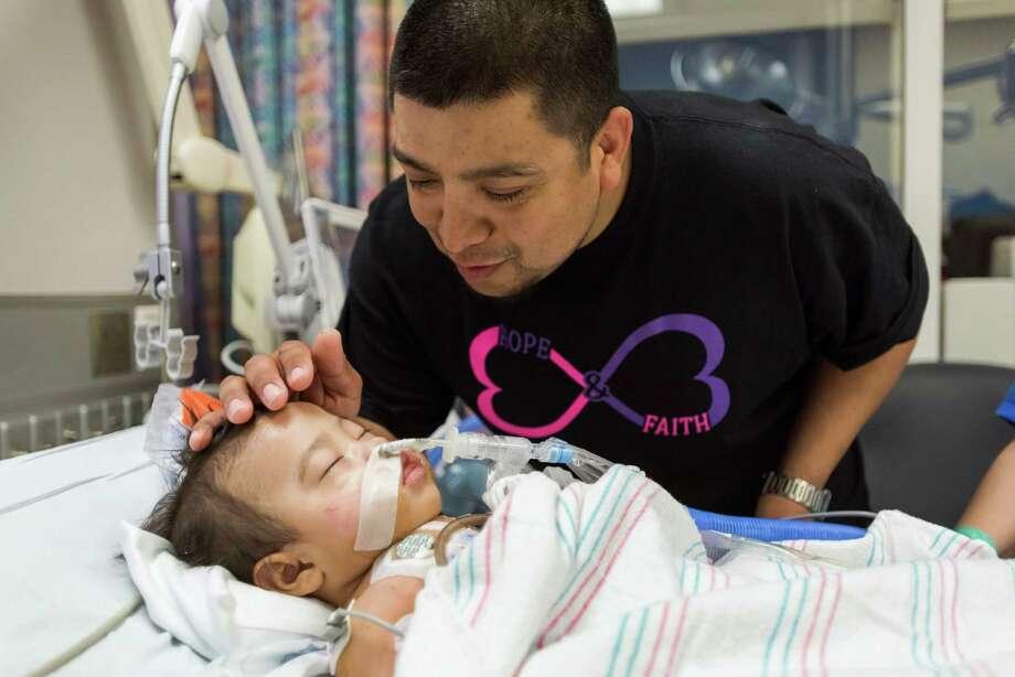 John Eric Mata seeing Knatalye Hope for the first time after separation. Photo: Allen Kramer, Texas Children's Hospital / Texas Children's Hospital
