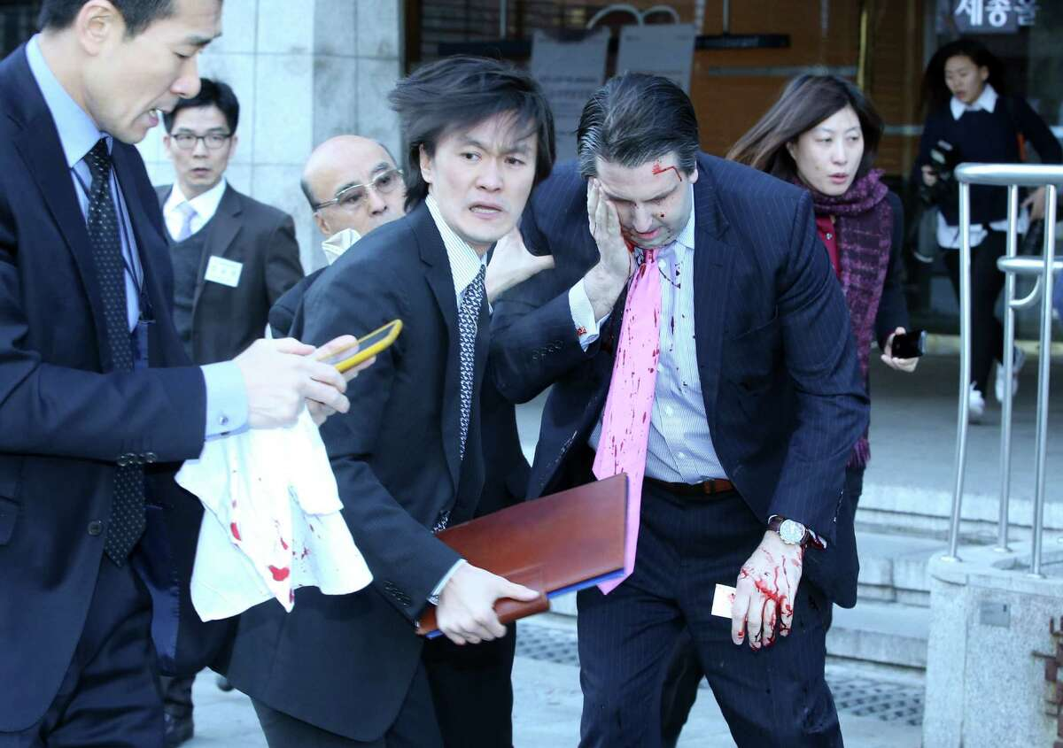 U.S. Ambassador Mark Lippert covers a wound to his face as he leaves the Sejong Cultural Institute in Seoul after he was attacked before giving a speech.