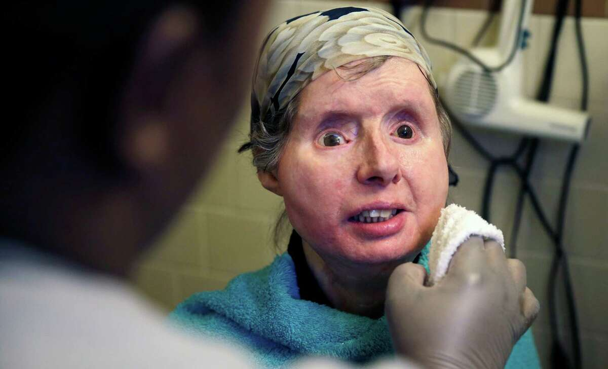 Charla Nash smiles as her care worker washes her face at her apartment in Boston, Mass. on Friday, Feb. 20, 2015. The Department of Defense is following Nash's progress, after funding her transplant surgery in 2011. Nash lost her face, eyes and hands after being mauled by a chimpanzee in Stamford, Conn. in 2009.