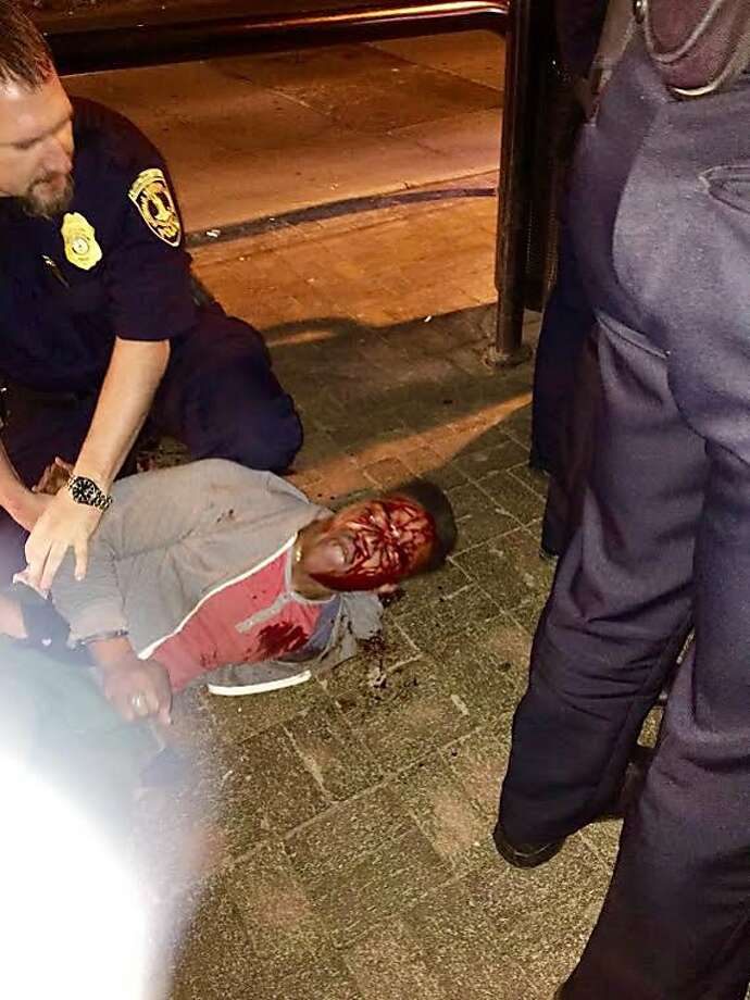 Martese Johnson's face and shirt were bloodied during his arrest early Wednesday. Photo: Bryan Beaubrun, Associated Press