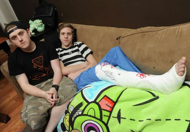 Sixteen-year-old Christien Brown, right, sits on his family's couch, after breaking his leg at SkyZone trampoline park, with his brother Sebastien Brown who assisted him through his trauma on Tuesday April 7, 2015 in Cohoes, N.Y. (Michael P. Farrell/Times Union) Photo: Michael P. Farrell / 00031336A