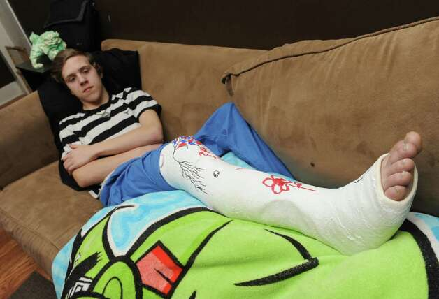 Sixteen-year-old Christien Brown sits on his family's couch, after breaking his leg at SkyZone trampoline park,  on Tuesday April 7, 2015 in Cohoes, N.Y. (Michael P. Farrell/Times Union) Photo: Michael P. Farrell / 00031336A