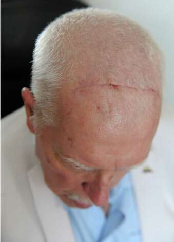 Tom Bradley shows a scar on his head at his home Thursday, March 12, 2015 in Guilderland, N.Y. Tom is recovering from his brain surgery and deep brain stimulation (DBS) procedure to improve symptoms of his Parkinson's disease. (Lori Van Buren / Times Union) Photo: Lori Van Buren / 00030985A