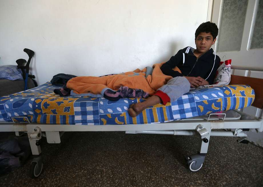Anas Baroudi, 16, shows his missing left foot, lost almost three years ago in the civil war in Syria, on his bed at a center for recovery in Kilis, Turkey. Photo: Hussein Malla, Associated Press