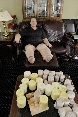Peter Heck sits in his living room at his home on Tuesday, April 21, 2015, in North Greenbush, N.Y.  The bandages on the table are what Heck uses to wrap his legs, which are wrapped for the majority of the 24 hours in a day.  (Paul Buckowski / Times Union) Photo: PAUL BUCKOWSKI / 00031466A