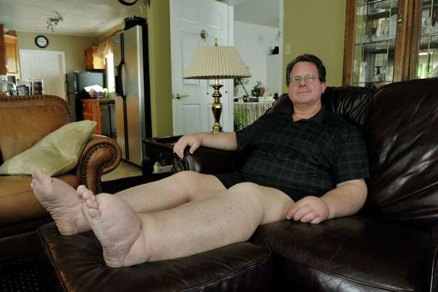 Peter Heck sits in his living room at his home on Tuesday, April 21, 2015, in North Greenbush, N.Y.    (Paul Buckowski / Times Union) Photo: PAUL BUCKOWSKI / 00031466A