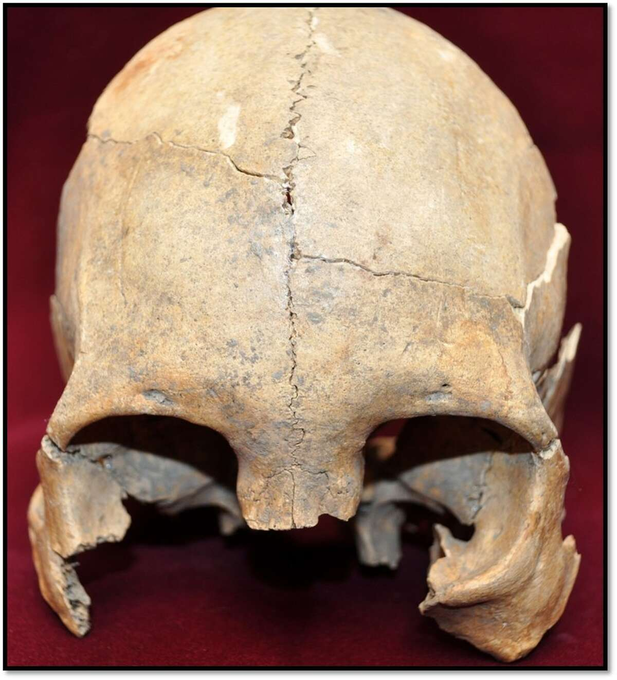 This adult female's skull had some mild cranial modifications to change the shape of her head.