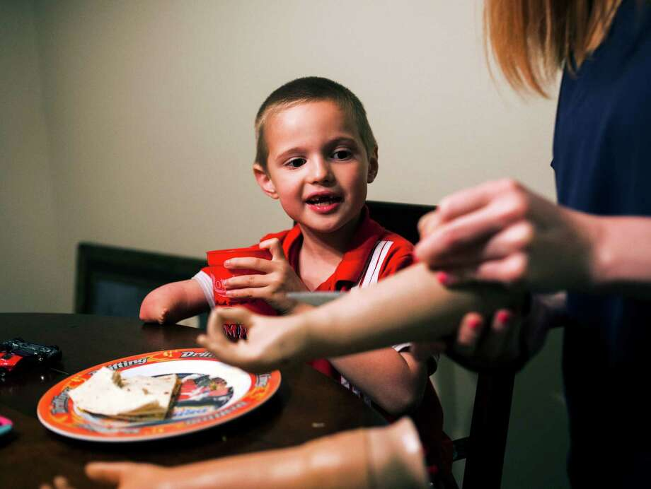 """Micah Cowart, 5, looks on as his mother removes the outer layer of """"skin"""" from his first prosthetic arm in April. Cowart was born with an underdeveloped right limb and recently received a newer model of myoelectric arm. Photo taken Thursday 4/16/15 Jake Daniels/The Enterprise Photo: Jake Daniels / ©2015 The Beaumont Enterprise/Jake Daniels"""