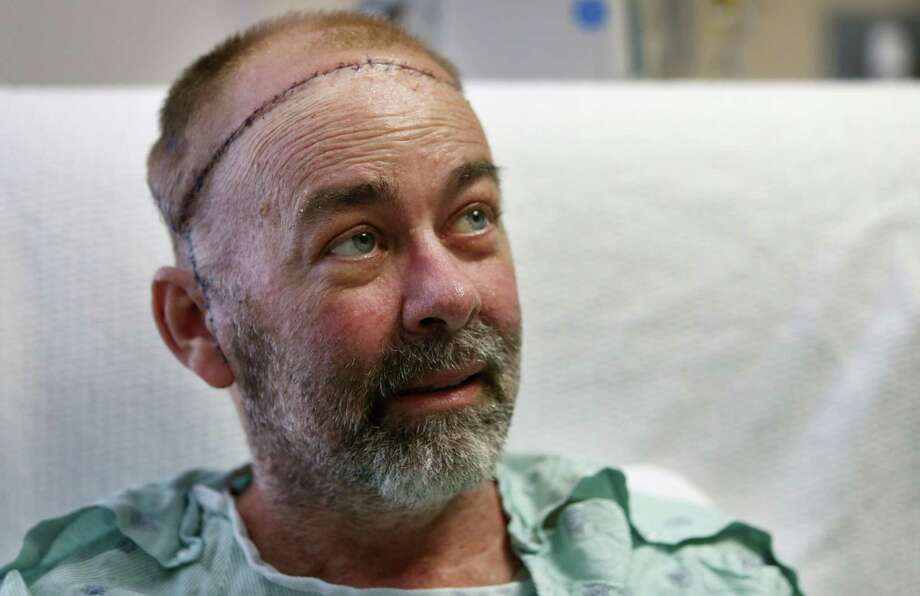 In this photo taken on Wednesday, June 3, 2015, transplant patient Jim Boysen sits in his hospital bed at Houston Methodist Hospital in Houston. Texas doctors say they have done the world's first partial skull and scalp transplant to help Boysen with a large head wound from cancer treatment. MD Anderson Cancer Center and Houston Methodist Hospital doctors announced Thursday, June 4 that they did the operation on May 22 at Houston Methodist. (Mayra Beltran/Houston Chronicle via AP) Photo: Mayra Beltran, AP / Houston Chronicle