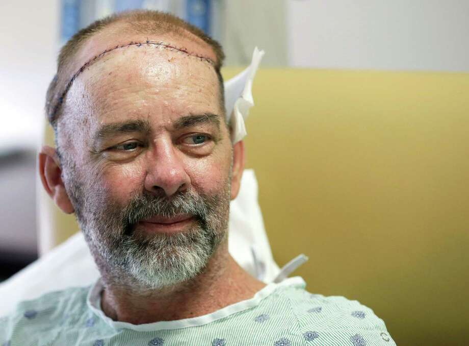 In this photo taken on Wednesday, June 3, 2015, James Boysen is interviewed in his hospital bed at Houston Methodist Hospital in Houston. Texas doctors say he received the world's first skull and scalp transplant from a human donor to help heal a large head wound from cancer treatment. Photo: Pat Sullivan, AP / AP
